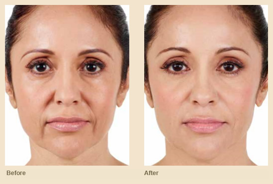 Aspire Dermatology - Cosmetic Procedures - Fillers - Cosmetic Treatments